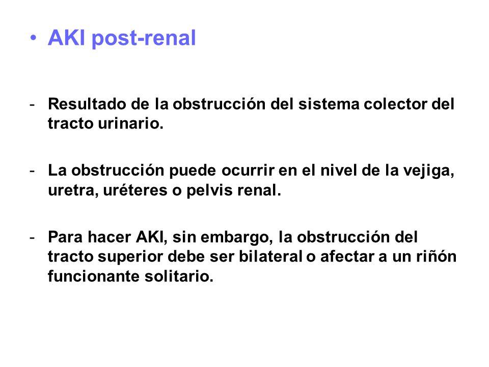 AKI post-renal Resultado de la obstrucción del sistema colector del tracto urinario.