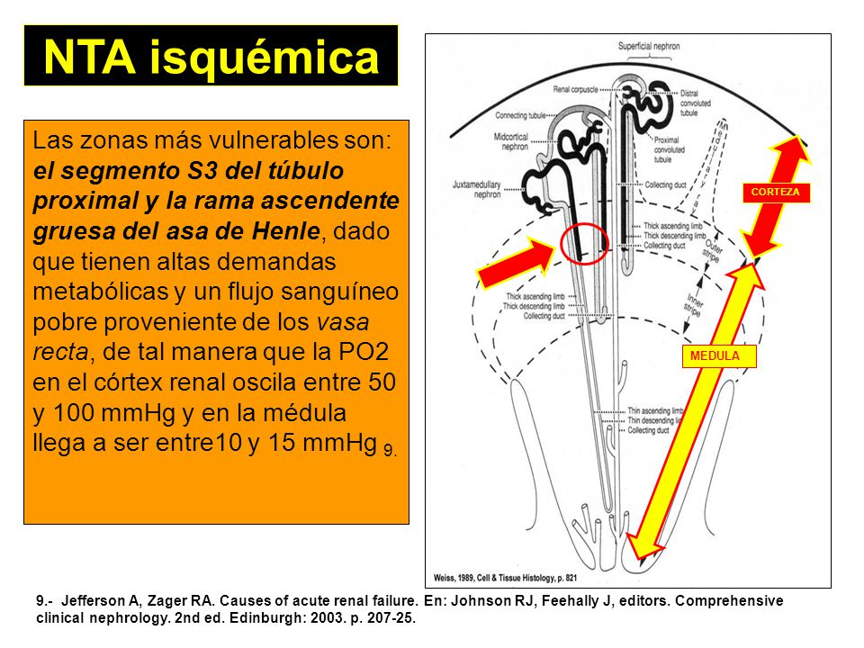 NTA isquémica