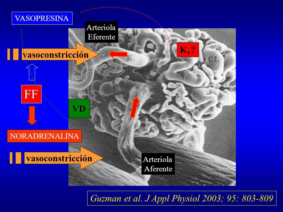FF Kf vasoconstricción VD vasoconstricción