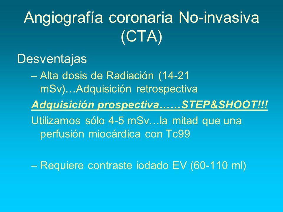 Angiografía coronaria No-invasiva (CTA)