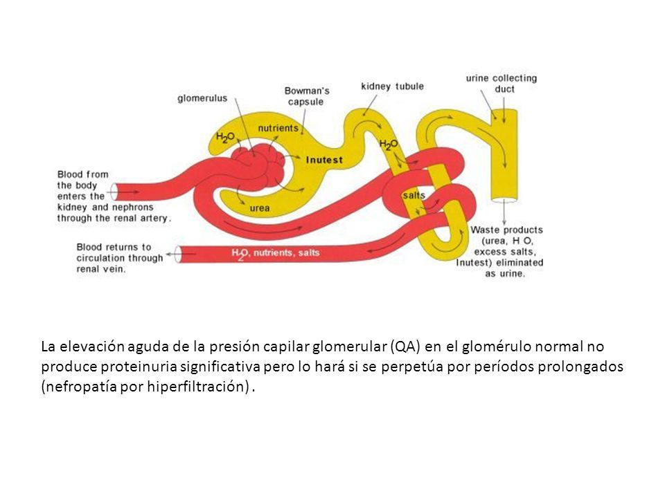 La elevación aguda de la presión capilar glomerular (QA) en el glomérulo normal no produce proteinuria significativa pero lo hará si se perpetúa por períodos prolongados (nefropatía por hiperfiltración) .
