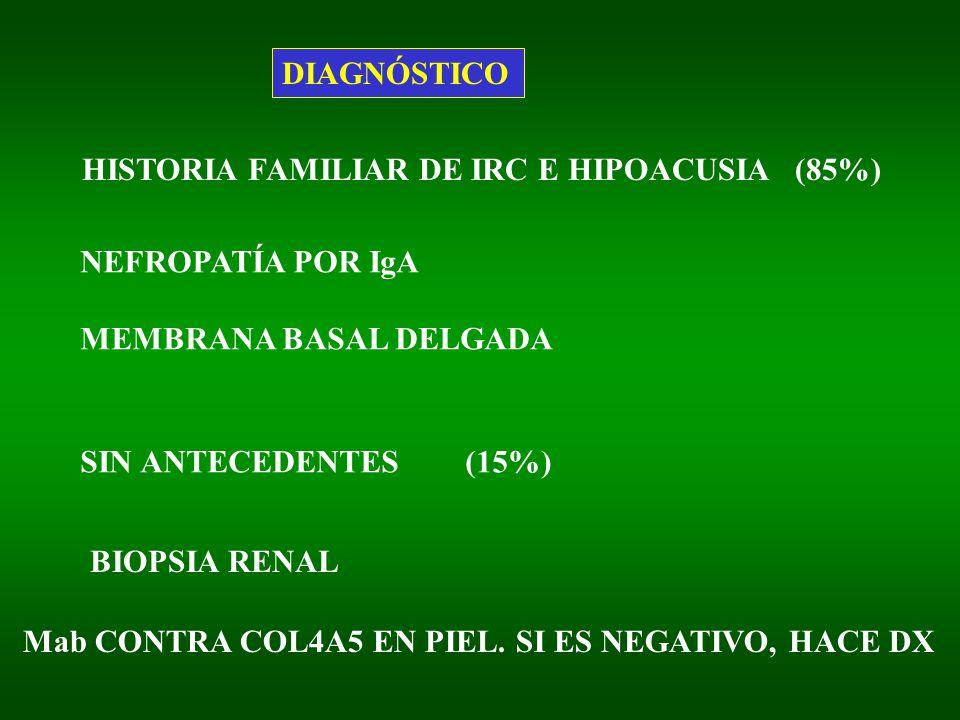 DIAGNÓSTICO HISTORIA FAMILIAR DE IRC E HIPOACUSIA (85%) NEFROPATÍA POR IgA. MEMBRANA BASAL DELGADA.