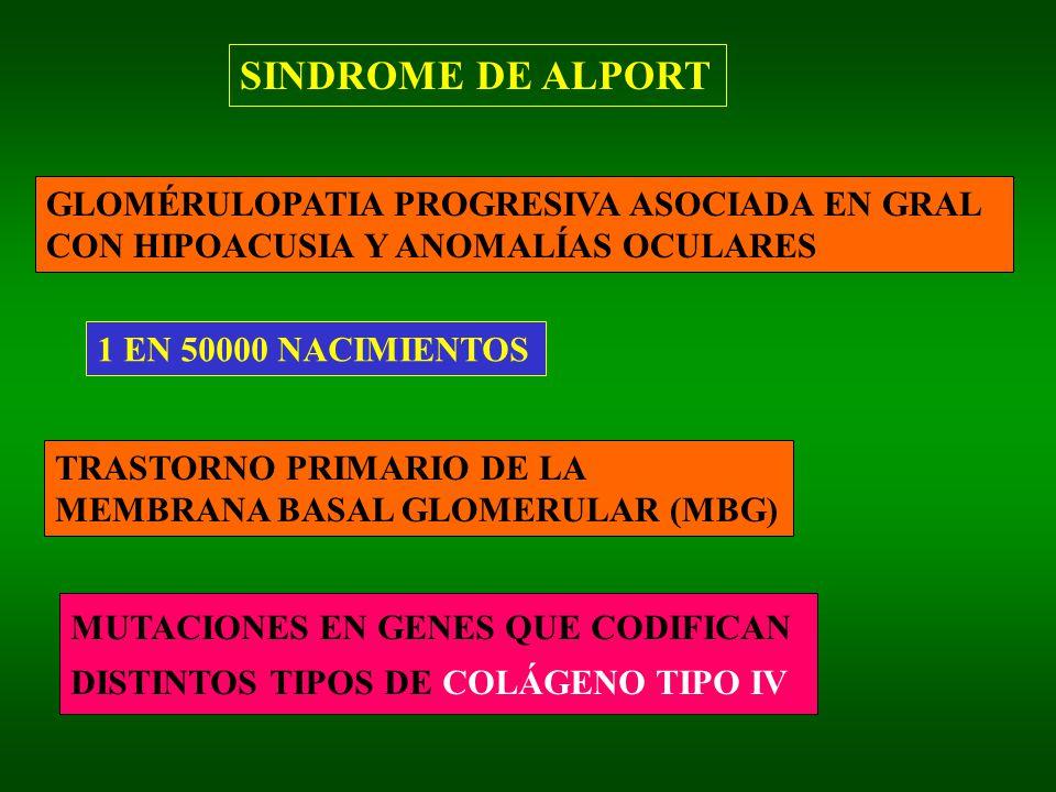 SINDROME DE ALPORT GLOMÉRULOPATIA PROGRESIVA ASOCIADA EN GRAL
