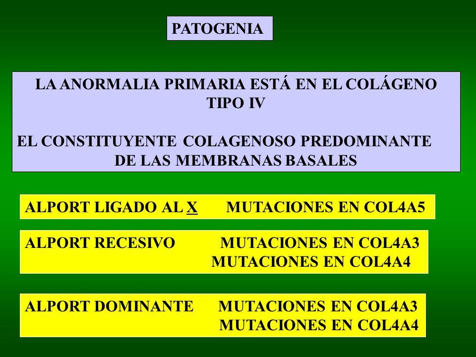 LA ANORMALIA PRIMARIA ESTÁ EN EL COLÁGENO TIPO IV