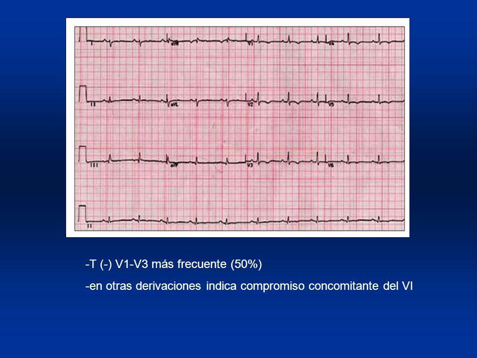 -T (-) V1-V3 más frecuente (50%)