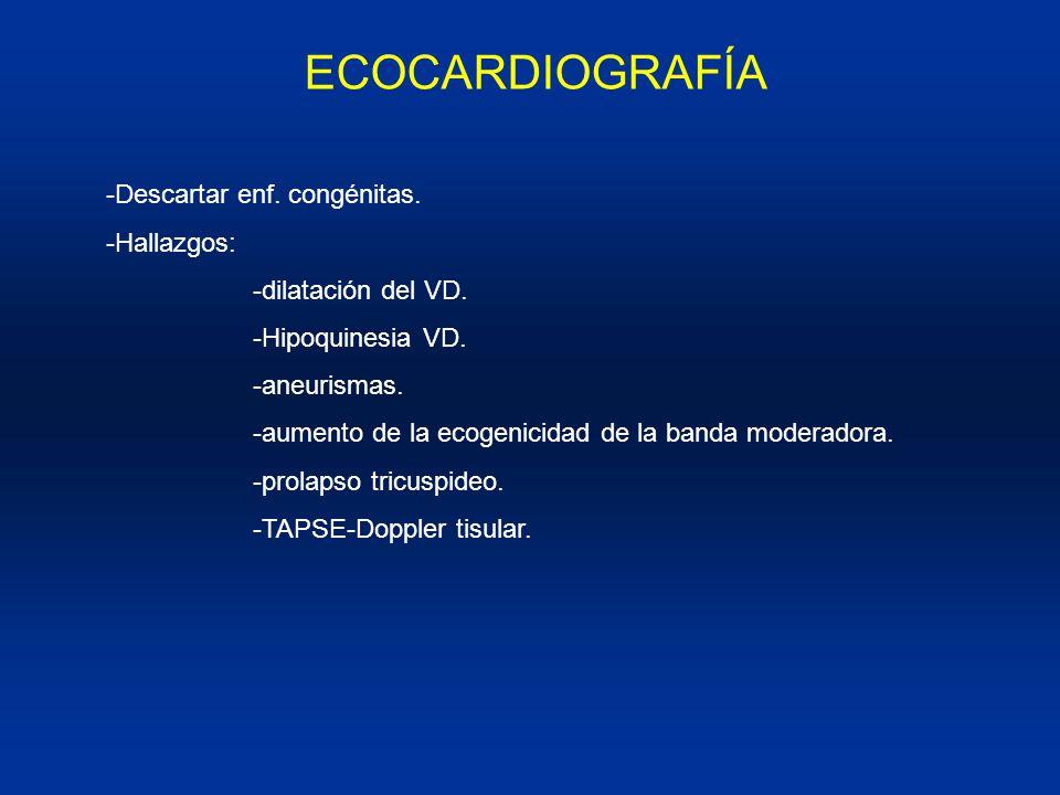 ECOCARDIOGRAFÍA -Descartar enf. congénitas. -Hallazgos: -dilatación del VD. -Hipoquinesia VD. -aneurismas.