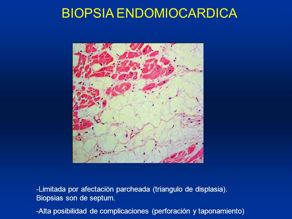 BIOPSIA ENDOMIOCARDICA