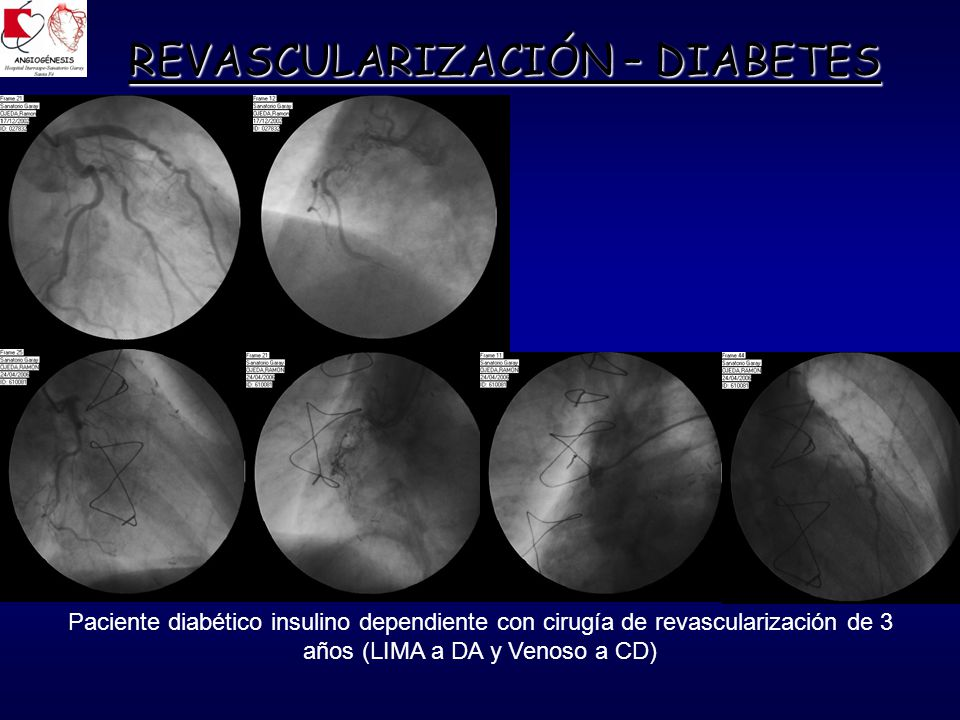 REVASCULARIZACIÓN – DIABETES