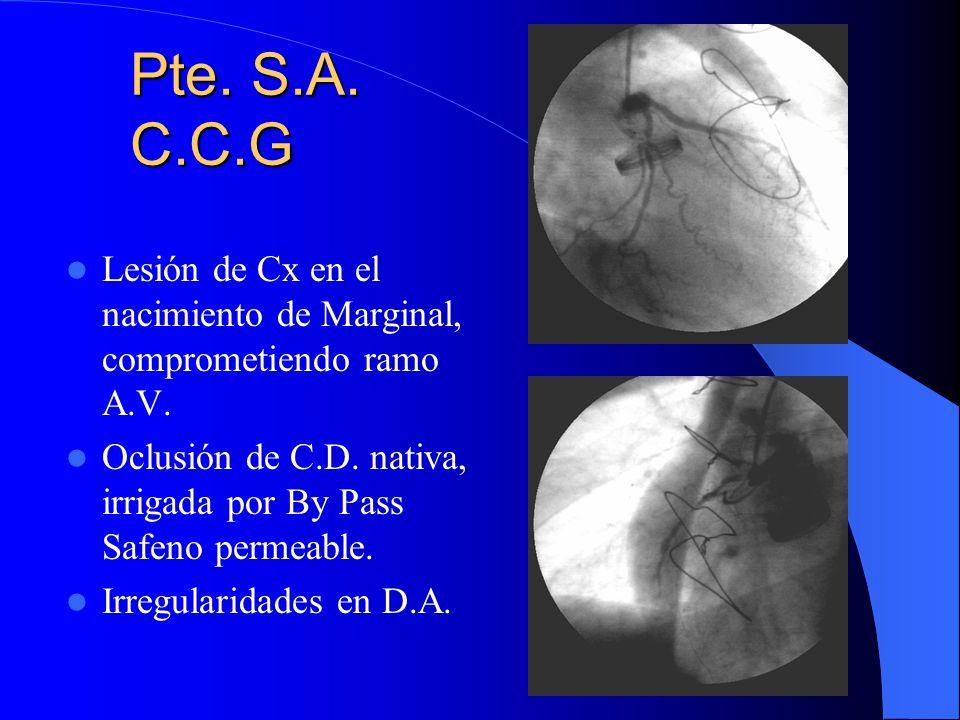 Pte. S.A. C.C.G Lesión de Cx en el nacimiento de Marginal, comprometiendo ramo A.V. Oclusión de C.D. nativa, irrigada por By Pass Safeno permeable.