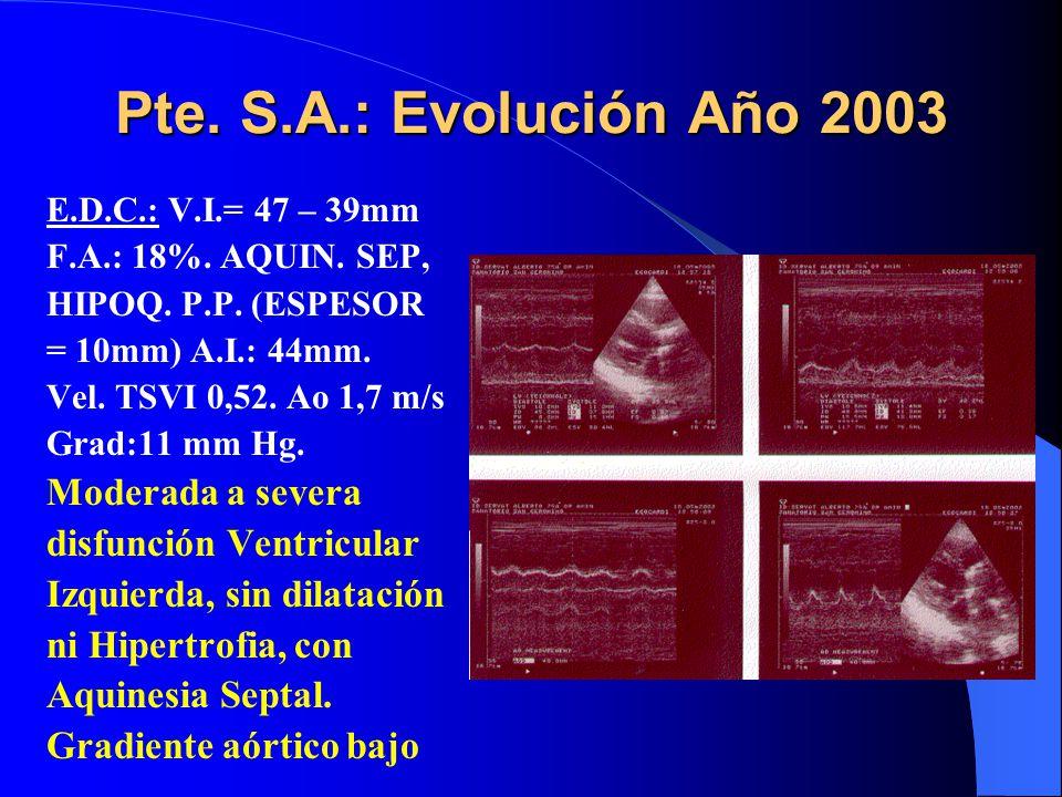 Pte. S.A.: Evolución Año 2003 Moderada a severa disfunción Ventricular