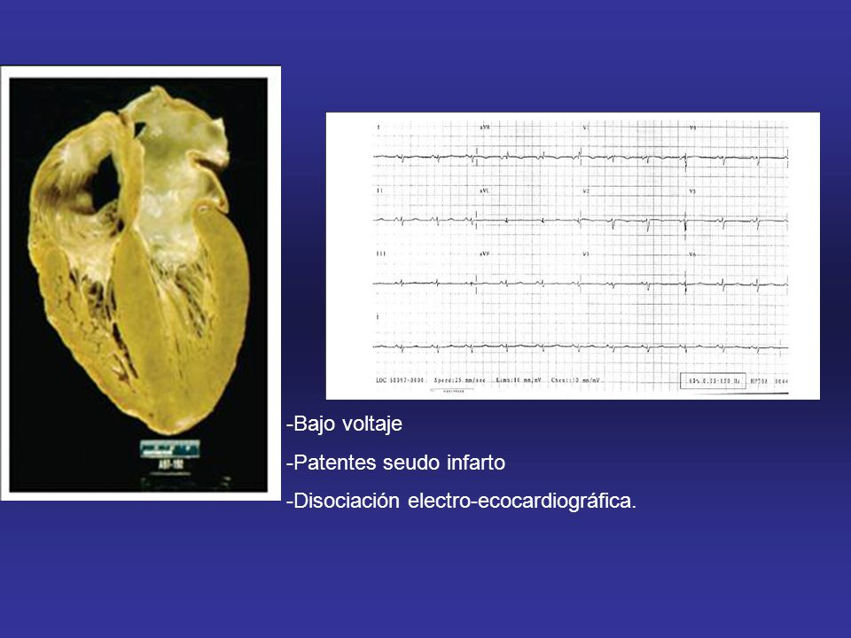 Bajo voltaje Patentes seudo infarto -Disociación electro-ecocardiográfica.
