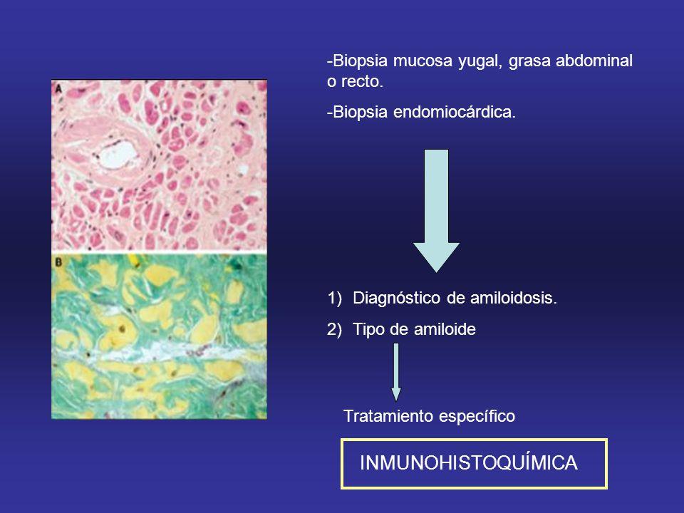 INMUNOHISTOQUÍMICA -Biopsia mucosa yugal, grasa abdominal o recto.