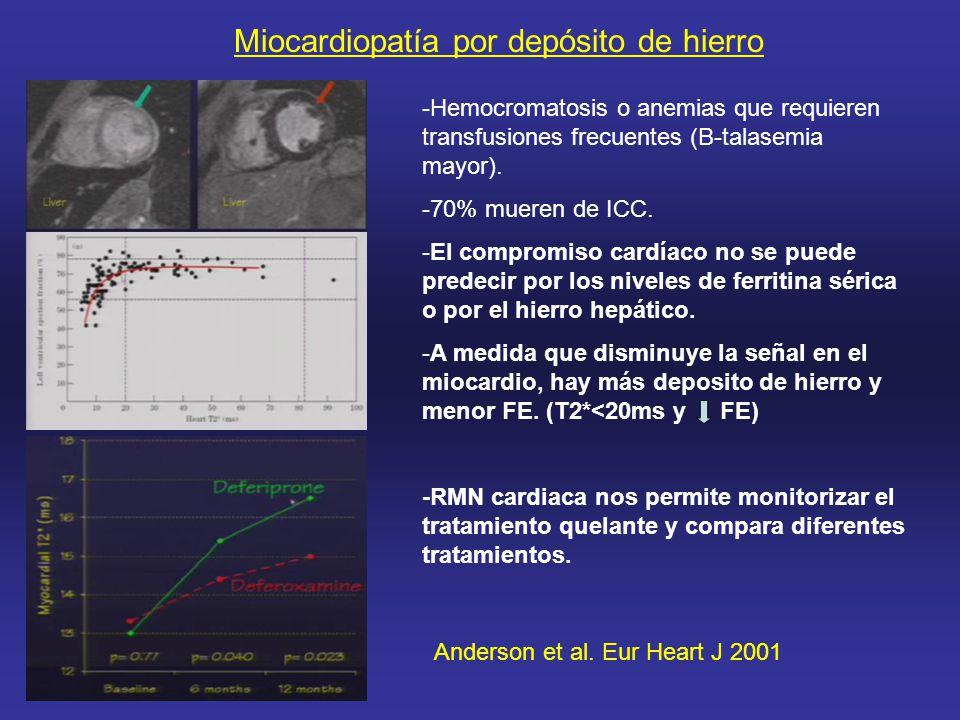 Miocardiopatía por depósito de hierro