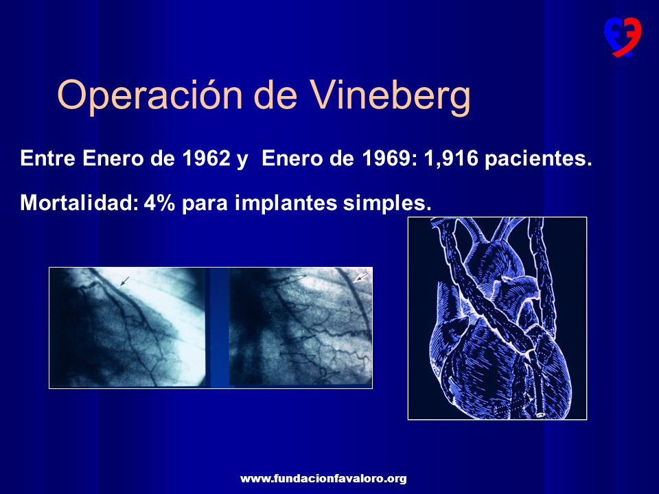 Operación de Vineberg Entre Enero de 1962 y Enero de 1969: 1,916 pacientes.