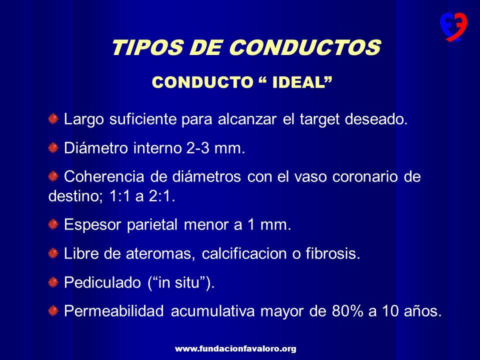 TIPOS DE CONDUCTOS CONDUCTO IDEAL