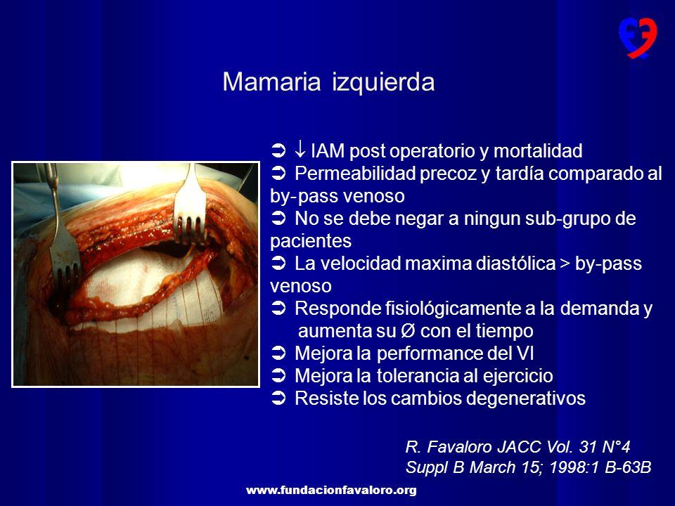 Mamaria izquierda  IAM post operatorio y mortalidad