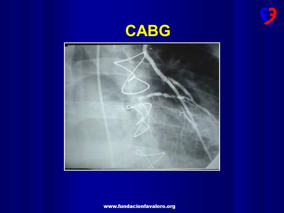 CABG MII en Y (DA-DG )