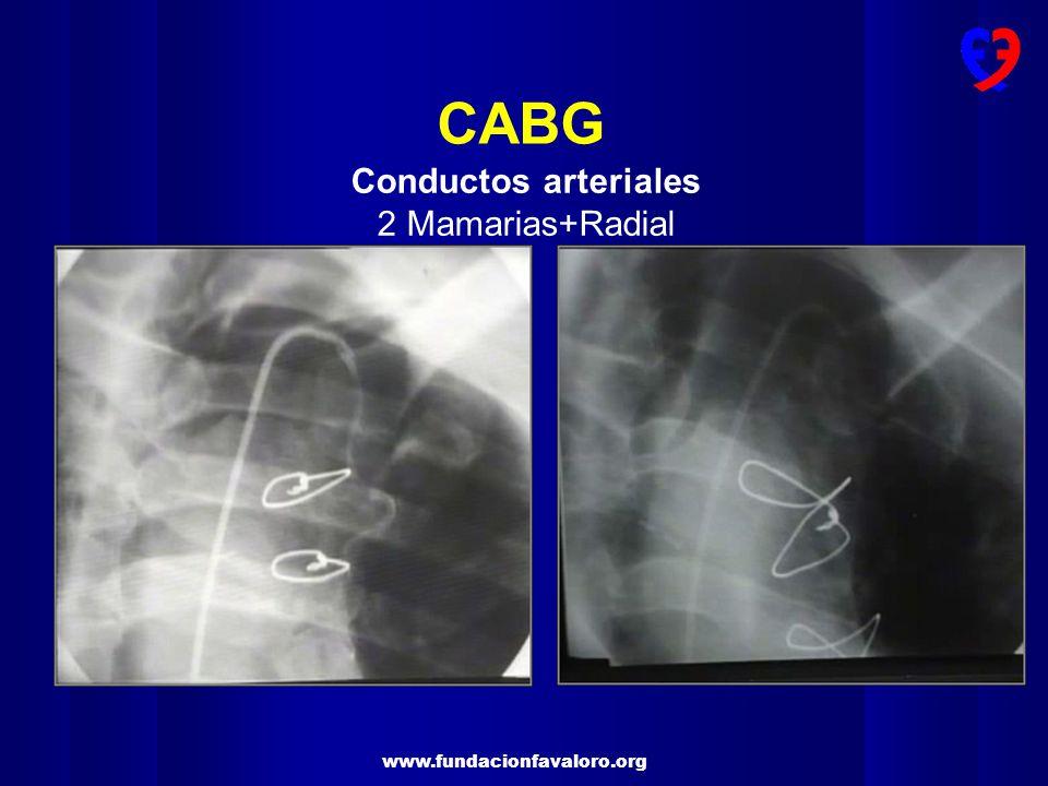 CABG Conductos arteriales 2 Mamarias+Radial