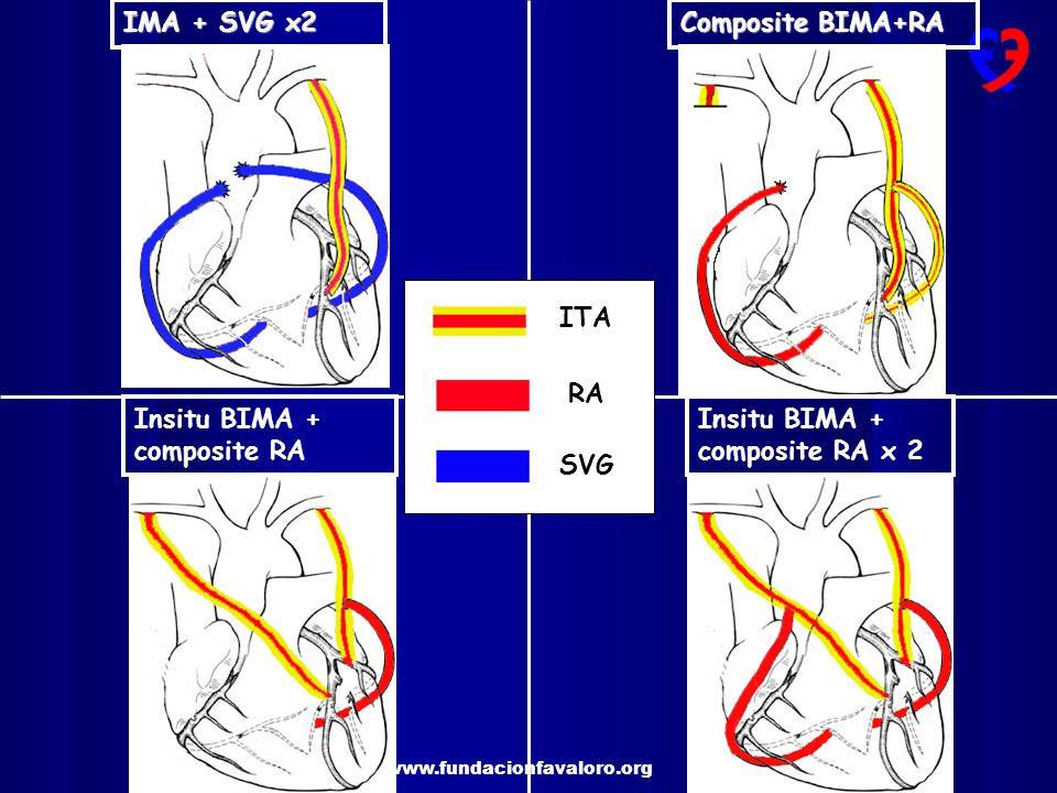 IMA + SVG x2 Composite BIMA+RA ITA RA Insitu BIMA + composite RA Insitu BIMA + composite RA x 2 SVG