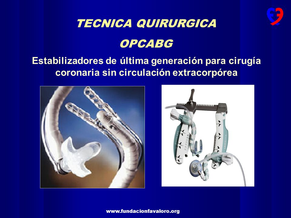 TECNICA QUIRURGICA OPCABG