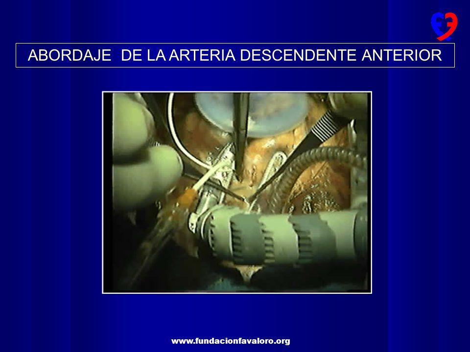 ABORDAJE DE LA ARTERIA DESCENDENTE ANTERIOR