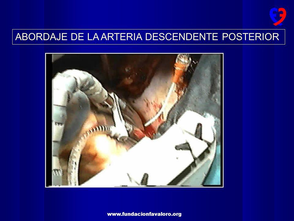 ABORDAJE DE LA ARTERIA DESCENDENTE POSTERIOR
