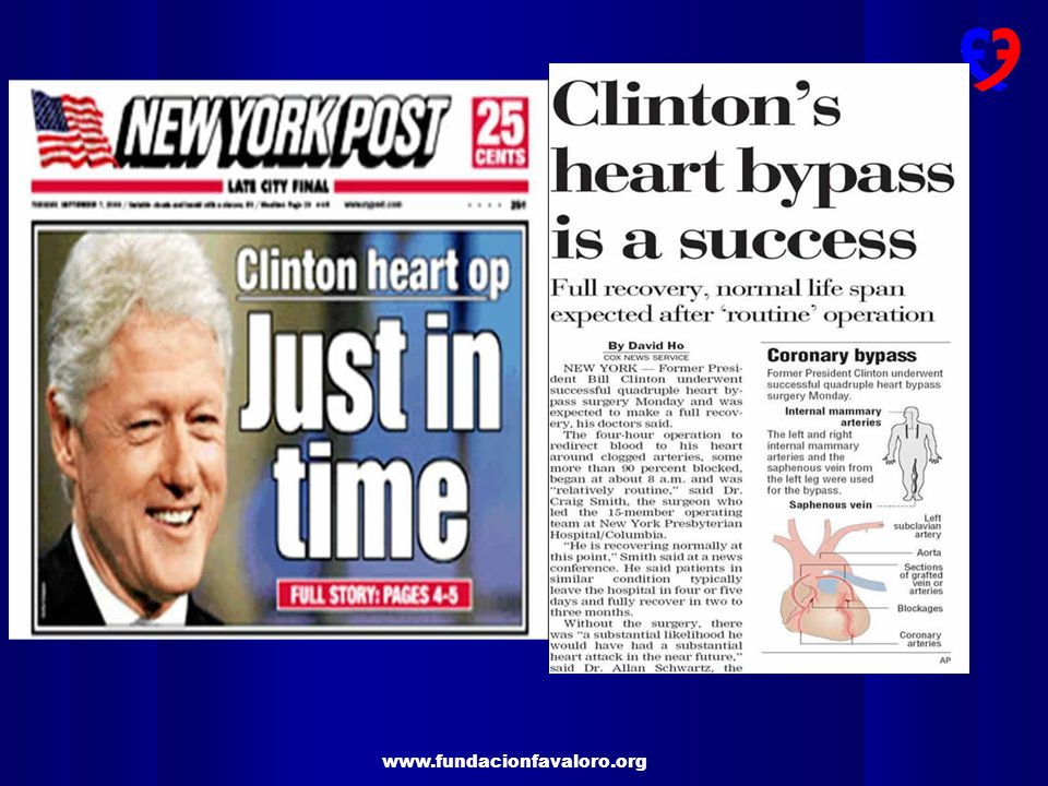 Welcome encouragement for CABG as best treatment for MVIHD with Bill Clinton undergoing CABG