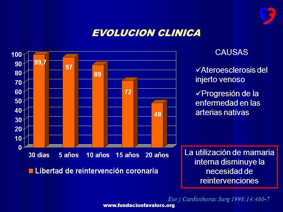 Eur j Cardiothorac Surg 1998;14:480-7