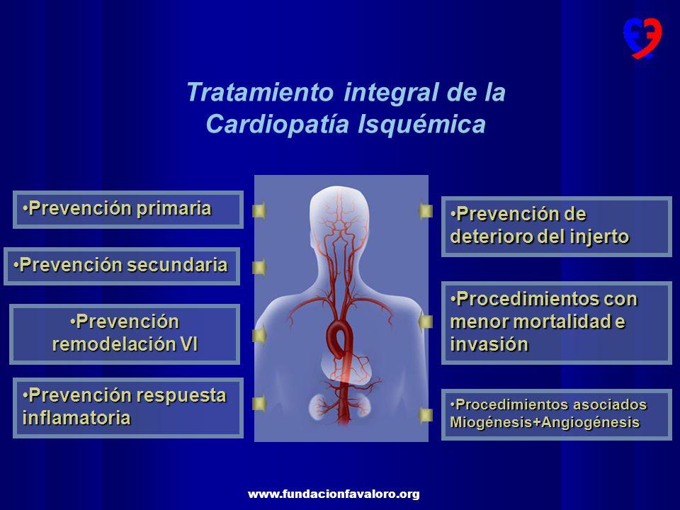Tratamiento integral de la Cardiopatía Isquémica