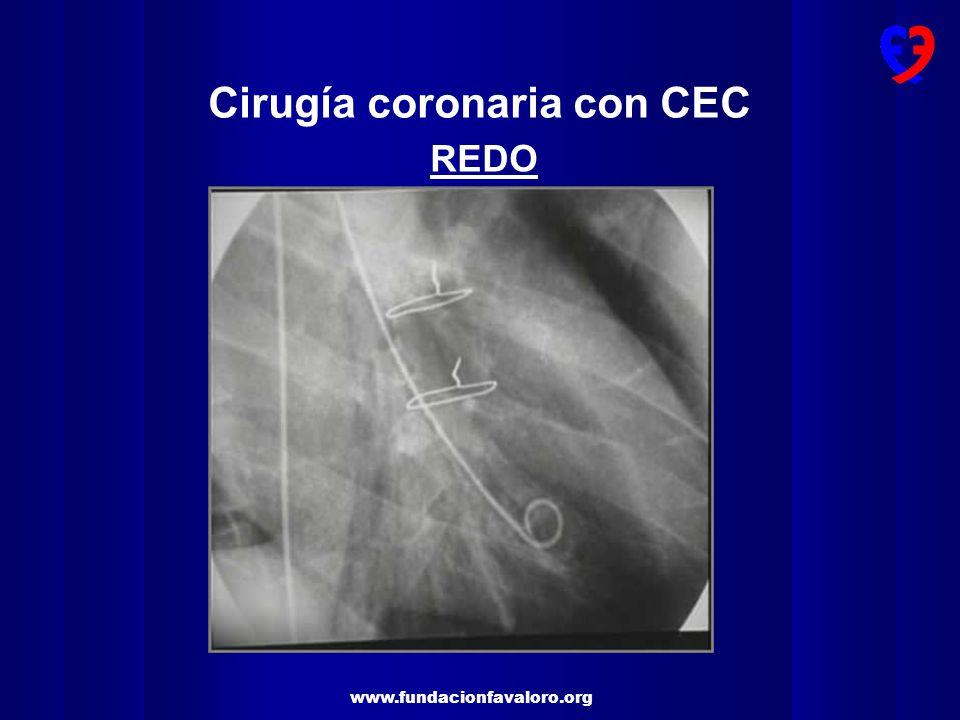 Cirugía coronaria con CEC