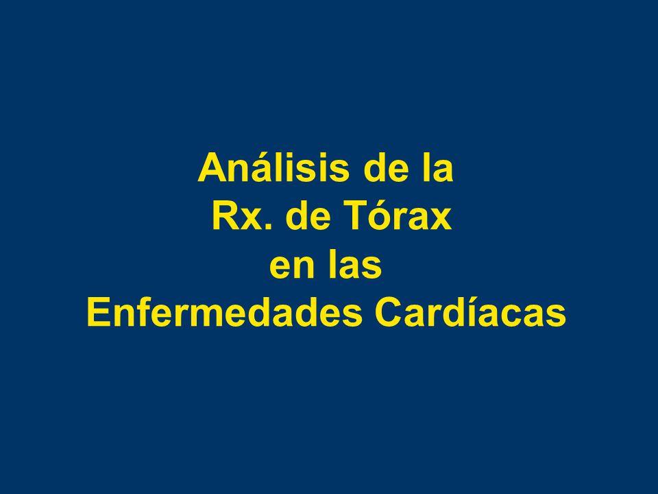 Análisis de la Rx. de Tórax en las Enfermedades Cardíacas