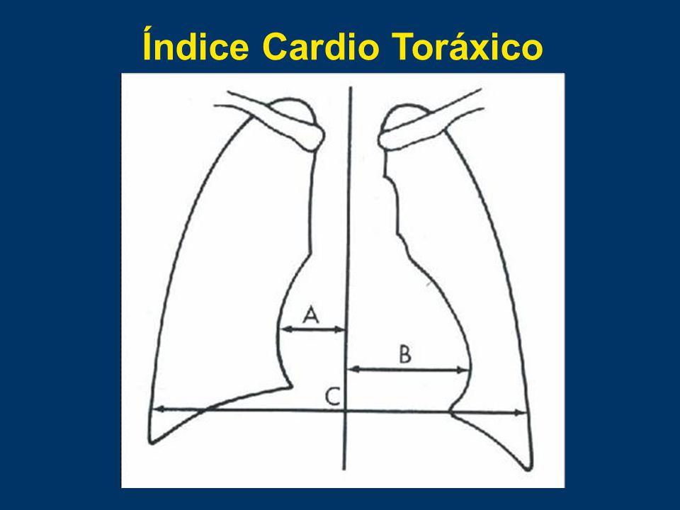 Índice Cardio Toráxico