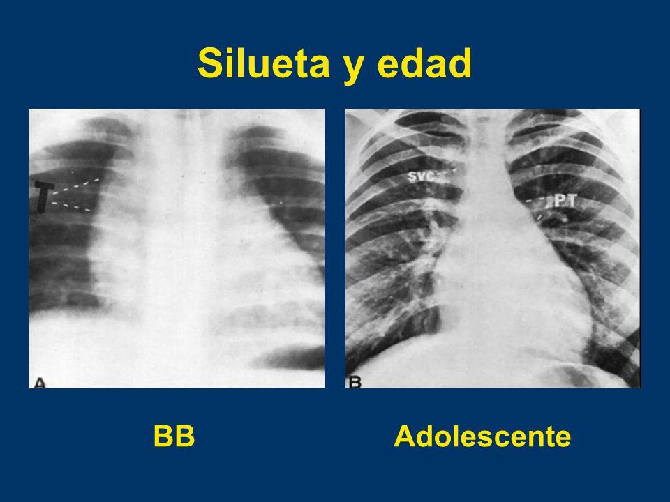 Silueta y edad BB Adolescente