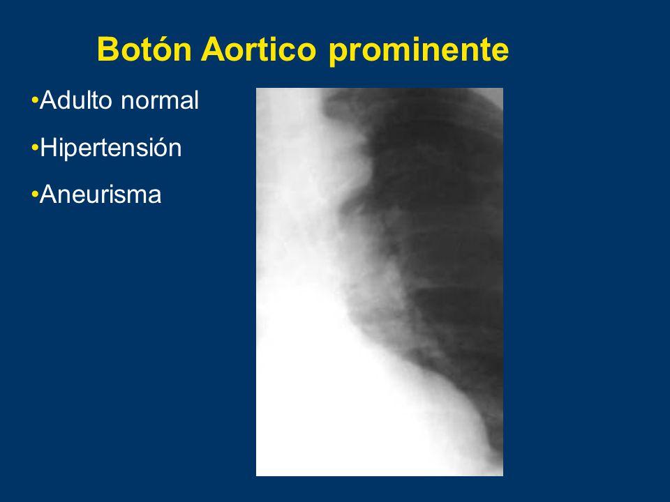 Botón Aortico prominente
