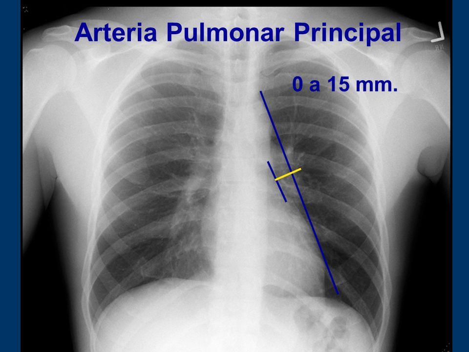 Arteria Pulmonar Principal