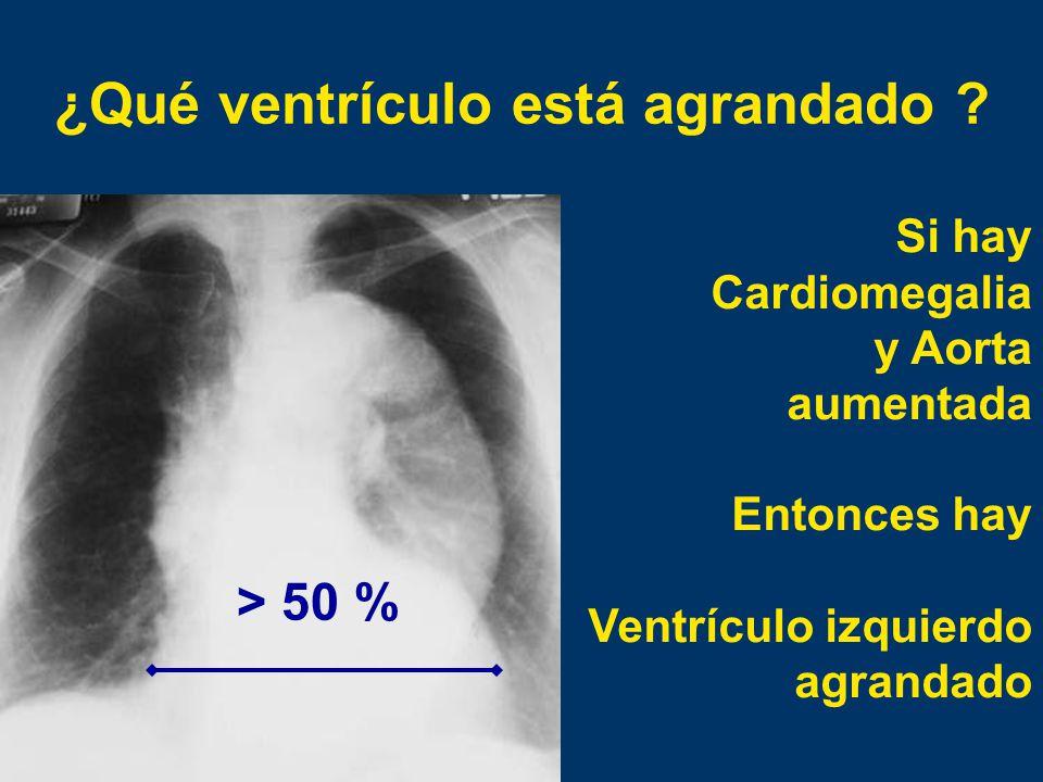 ¿Qué ventrículo está agrandado
