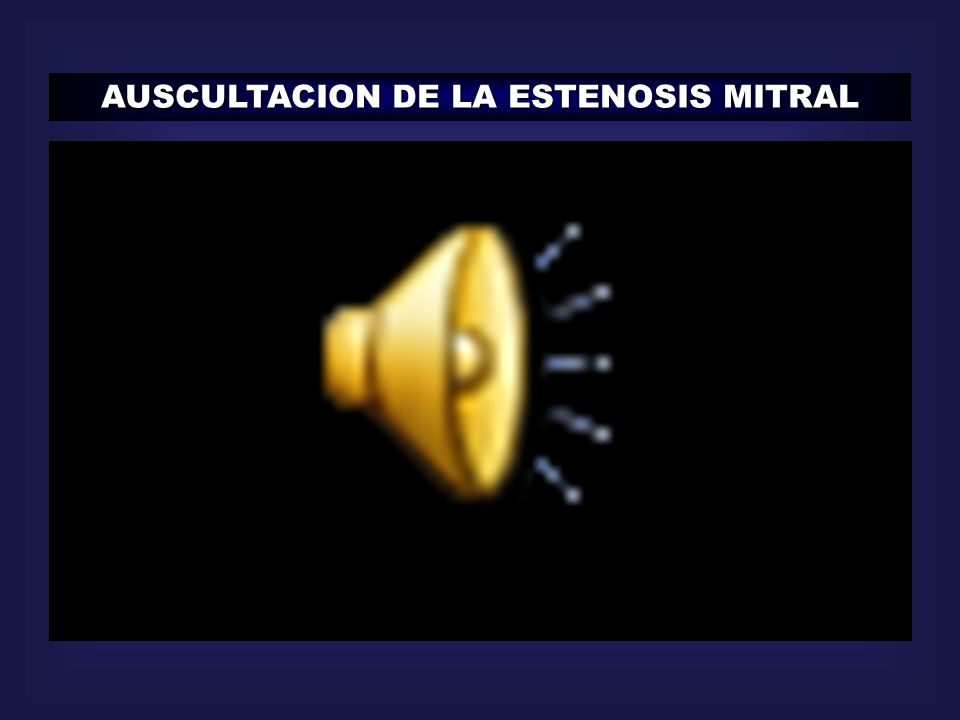 AUSCULTACION DE LA ESTENOSIS MITRAL