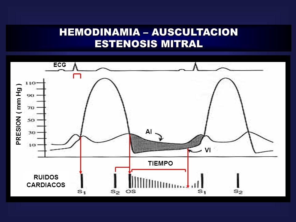 HEMODINAMIA – AUSCULTACION ESTENOSIS MITRAL