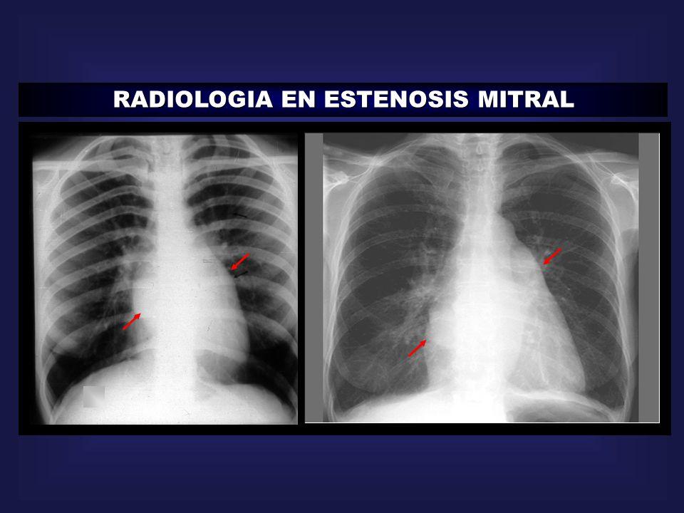 RADIOLOGIA EN ESTENOSIS MITRAL