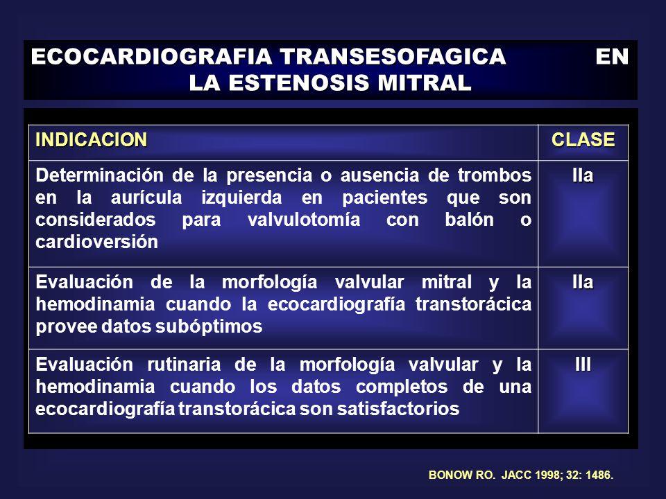 ECOCARDIOGRAFIA TRANSESOFAGICA EN LA ESTENOSIS MITRAL