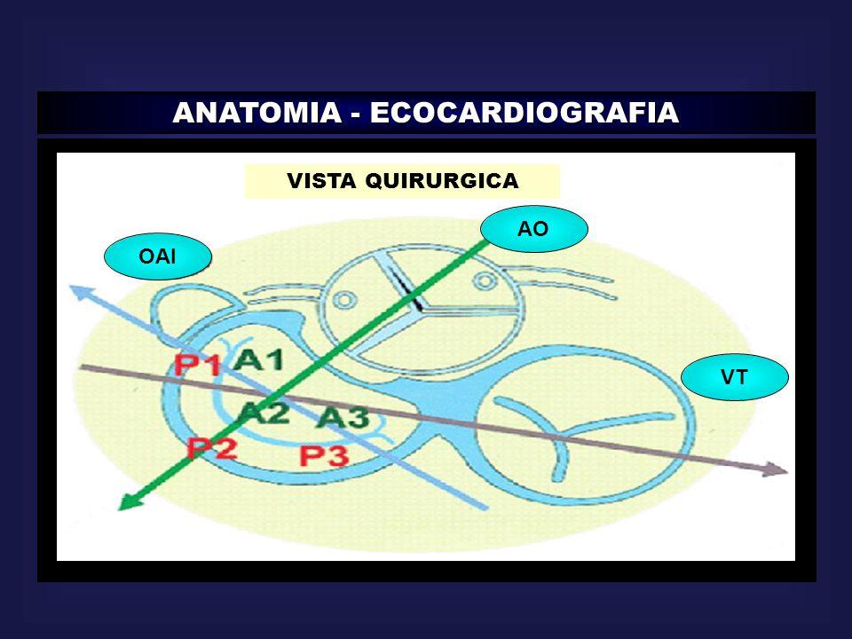 ANATOMIA - ECOCARDIOGRAFIA