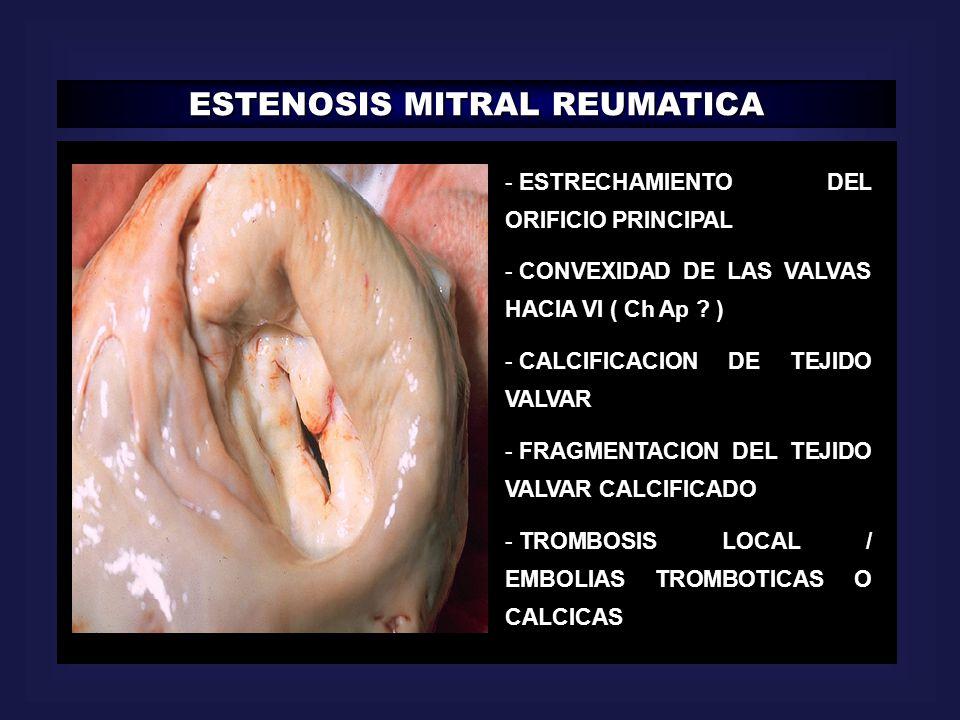 ESTENOSIS MITRAL REUMATICA