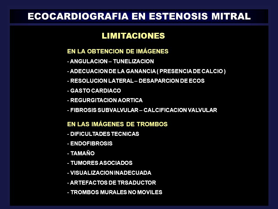 ECOCARDIOGRAFIA EN ESTENOSIS MITRAL