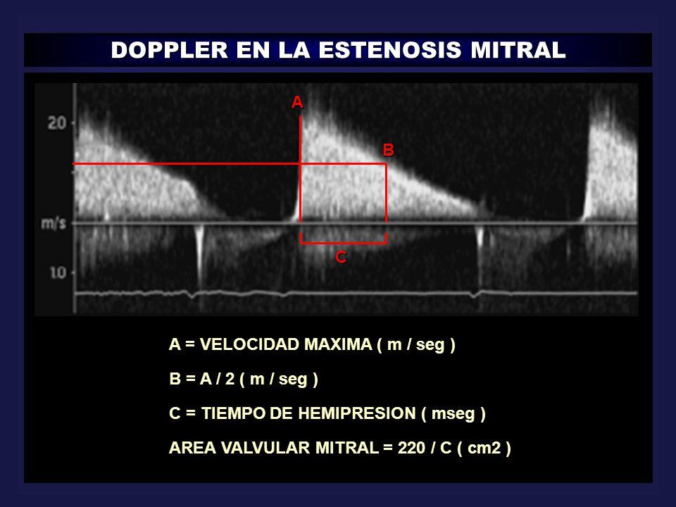 DOPPLER EN LA ESTENOSIS MITRAL