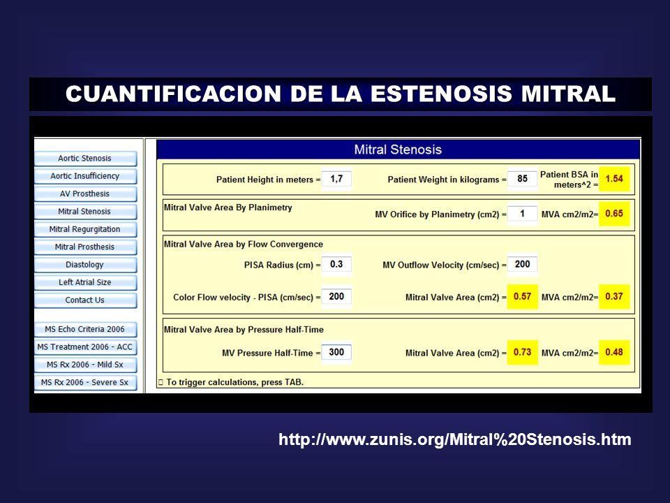 CUANTIFICACION DE LA ESTENOSIS MITRAL