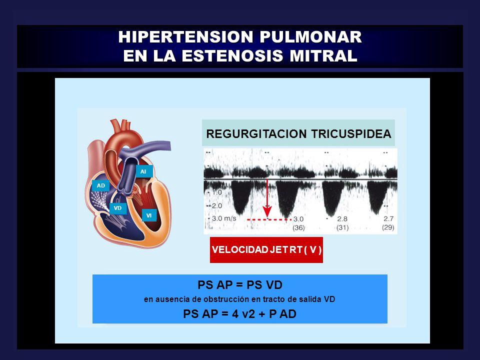 HIPERTENSION PULMONAR EN LA ESTENOSIS MITRAL