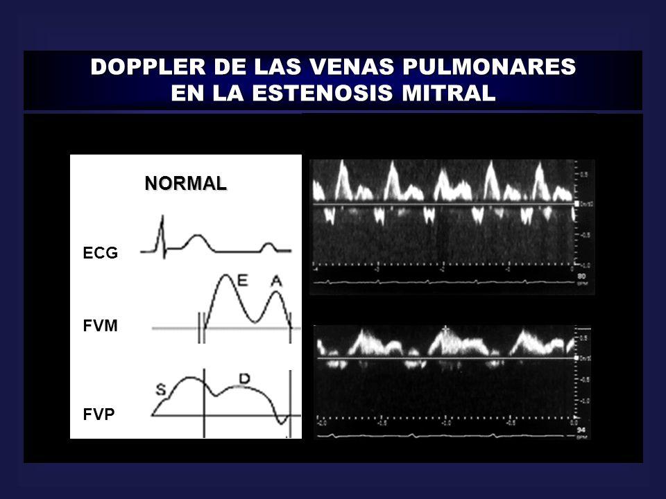 DOPPLER DE LAS VENAS PULMONARES EN LA ESTENOSIS MITRAL