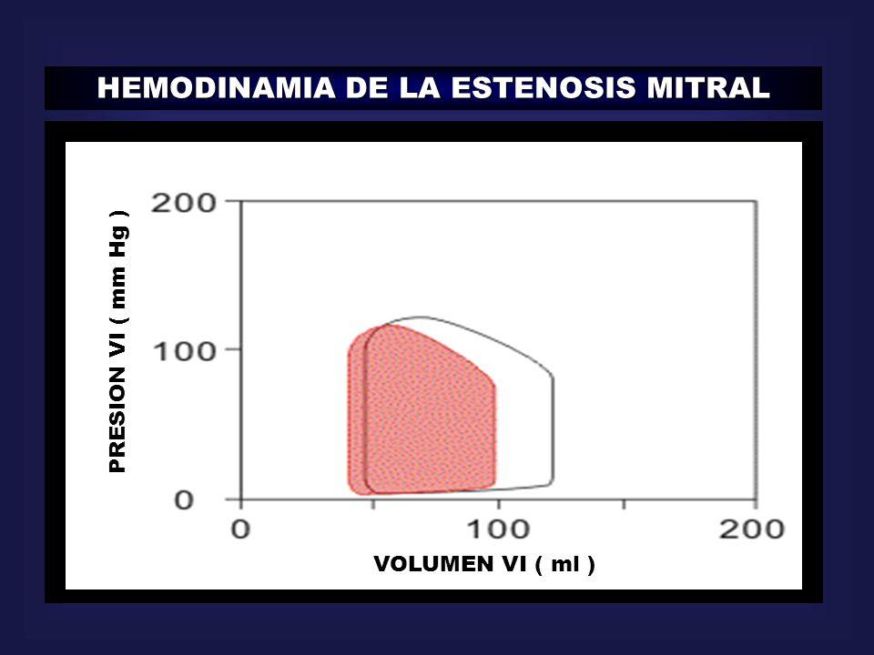 HEMODINAMIA DE LA ESTENOSIS MITRAL