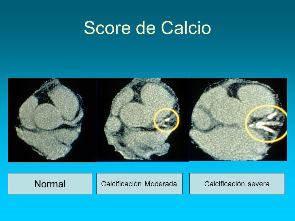Calcificación Moderada