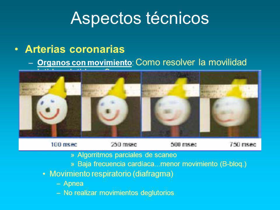 Aspectos técnicos Menor Resolución temporal : Arterias coronarias